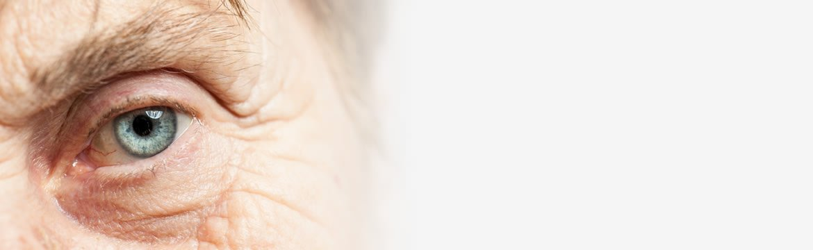Cataract Surgery & Refractive Lens Exchange