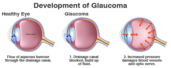 Private Glaucoma Treatment London